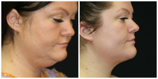 West Palm Beach Liposuction of Chin and Neck - Chin Liposuction West Palm Beach