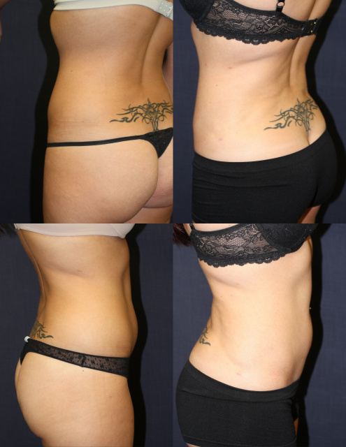 West Palm Beach Liposuction
