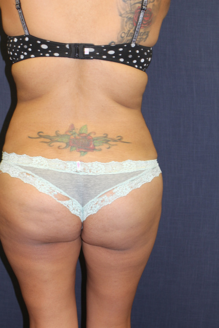 West Palm Beach Butt Lift Brazilian - After Butt Augmentation West Palm Beach