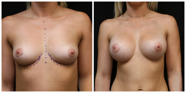 Palm Beach Natrelle Breast Implants - Before and After Natrelle Breast Implants Palm Beach