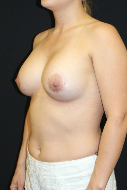 West Palm Beach Breast Implant Exchange - Post West Palm Beach Breast Implant Revision Using Sientra Impants For Upper Pole Fullness