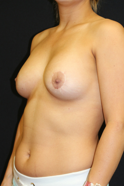 Breast Implant Exchange West Palm Beach - West Palm Beach Breast Implant Revision Pre Using Sientra for Upper Pole Fullness