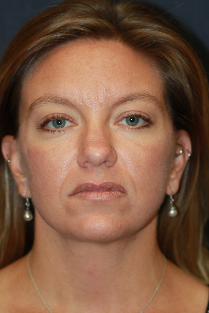 West Palm Beach Buccal Fat Removal - After