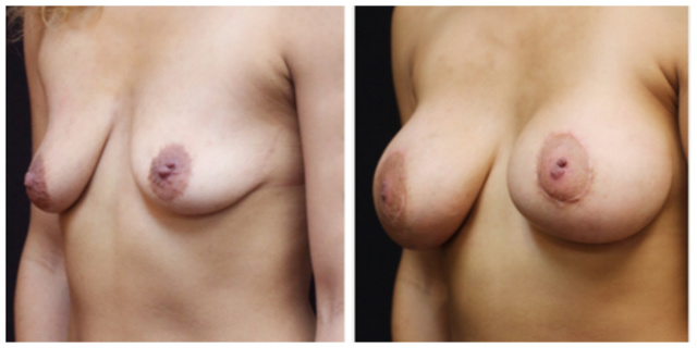 West Palm Beach Breast Implants