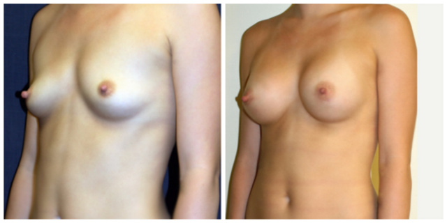 West Palm Beach Breast Implants - Before and After West Palm Beach Breast Augmentation