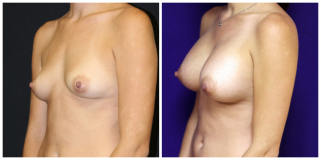 Breast Implants West Palm Beach - Before and after West Palm Beach Breast Implants Natrelle Silicone