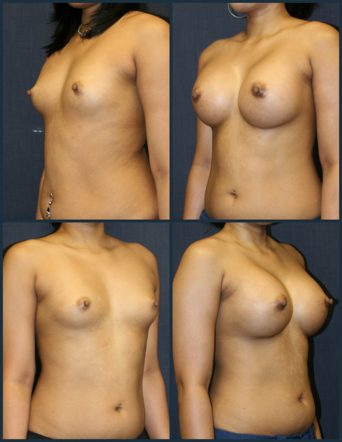 Breast Augmentation in West Palm Beach utilizing 425 cc breast implants