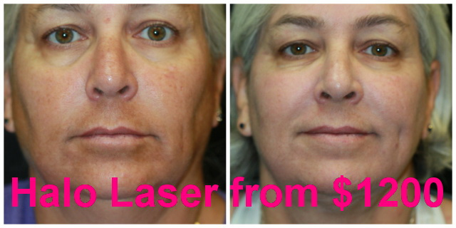 West Palm Beach Halo Laser Resurfacing - Before and After Halo Laser Resurfacing West Palm Beach