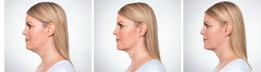West Palm Beach Kybella - Before and After Kybella West Palm Beach