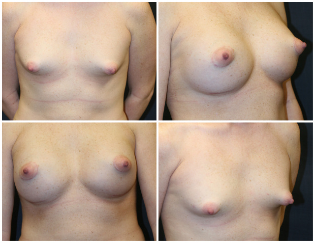 West Palm Beach Breast Enlargement