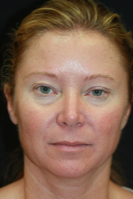 West Palm Beach Eyelids Surgery - Pre Blepharoplasty West Palm Beach