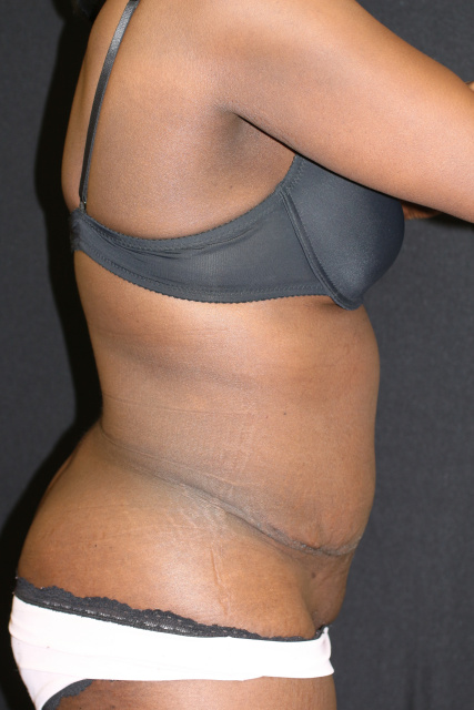 West Palm Beach Tummy Tuck - Post Abdominoplasty West Palm Beach