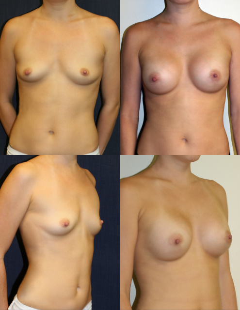 West Palm Beach Breast Implants - Post Pregnancy