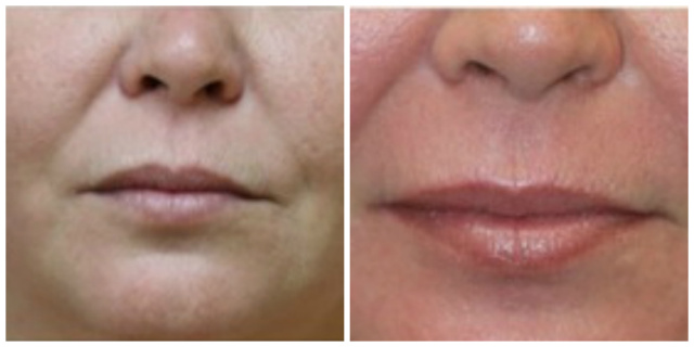 West Palm Beach Halo Laser - Before and After Halo Laser Resurfacing West Palm Beach
