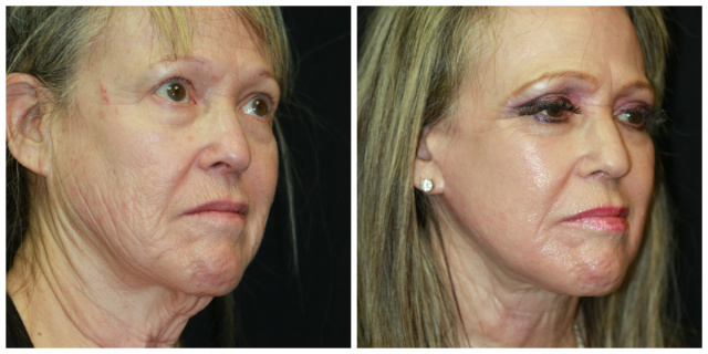 West Palm Beach Laser Resurfacing - Before and After Laser Resurfacing