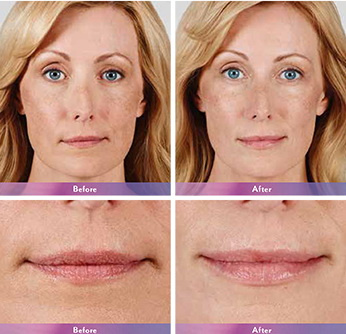 West Palm Beach Lip Augmentation - Before and After Lip Augmentation West Palm Beach - Before and after West Palm Beach Lip Injections