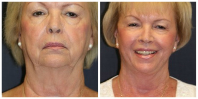 West Palm Beach Neck Liposuction - Before and After West Palm Beach Body Contouring