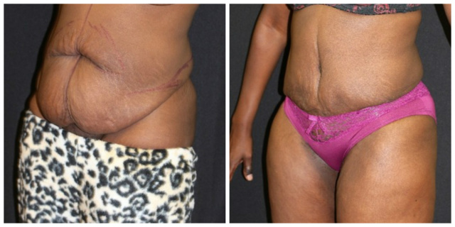 Liposuction West Palm Beach - Before and after West Palm Beach Body Contouring