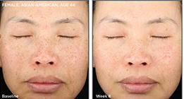 West Palm Beach Skincare - Before and After Skin Care West Palm Beach