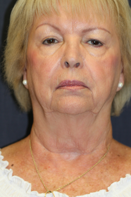 West Palm Beach Facelift - Before Rhytidectomy