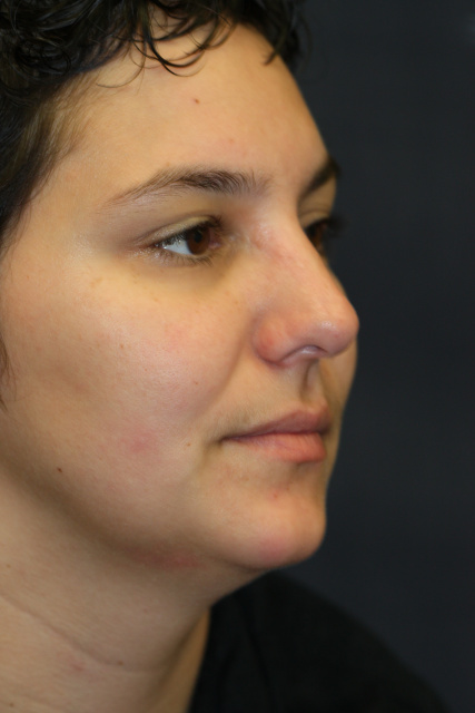 West Palm Beach Rhinoplasty - Nose Surgery Before