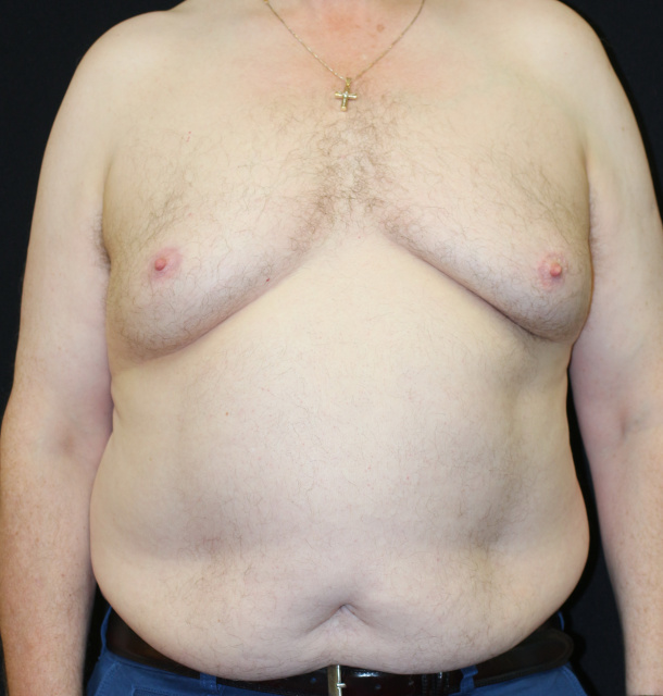 West Palm Beach Gynecomastia - Before Male Breast Reduction West Palm Beach