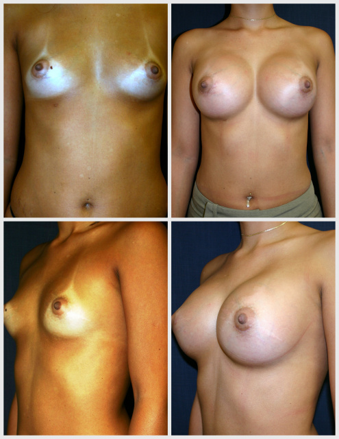 Breast Implants West Palm Beach