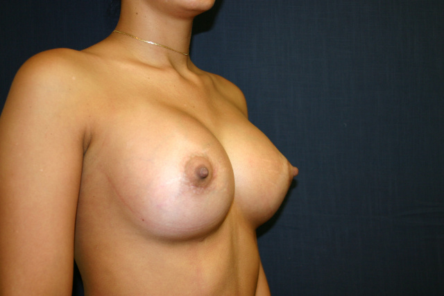 West Palm Beach Breast Implants - After Breast Augmentation