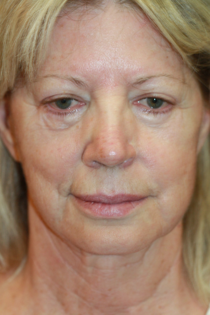 West Palm Beach Restylane Silk and West Palm Beach Juvederm - Pre Restylane Silk West Palm Beach and Juvederm West Palm Beach Treatment