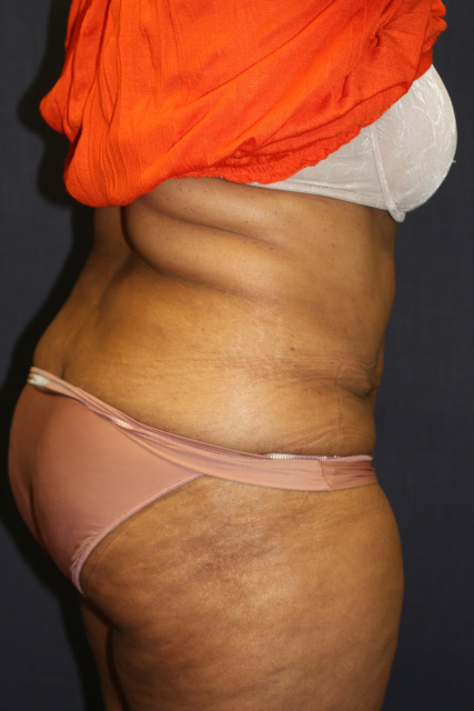 West Palm Beach Tummy Tuck - Post Abdominoplasty