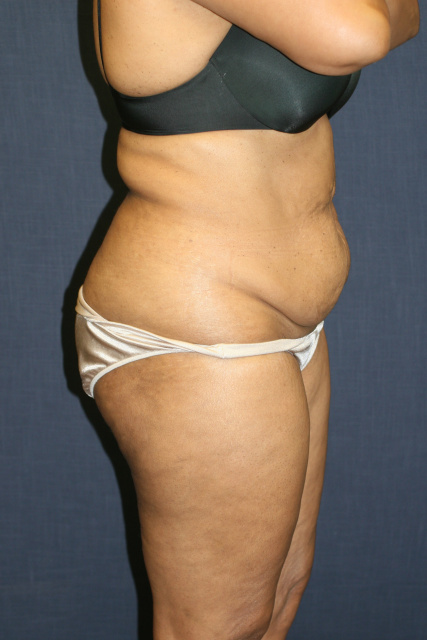 West Palm Beach Tummy Tuck - Pre Abdominoplasty