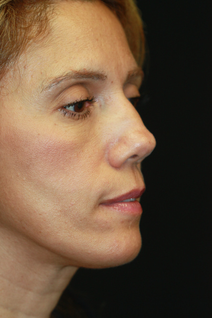 West Palm Beach Closed Rhinoplasty -After West Palm Beach Nose Surgery Post Bilateral Turbinectomy West Palm Beach