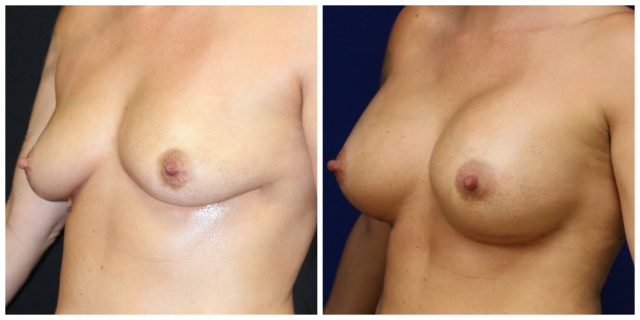 West Palm Beach Mentor Breast Implants - Before and After Mentor Memory Gel Breast Implants West Palm Beach
