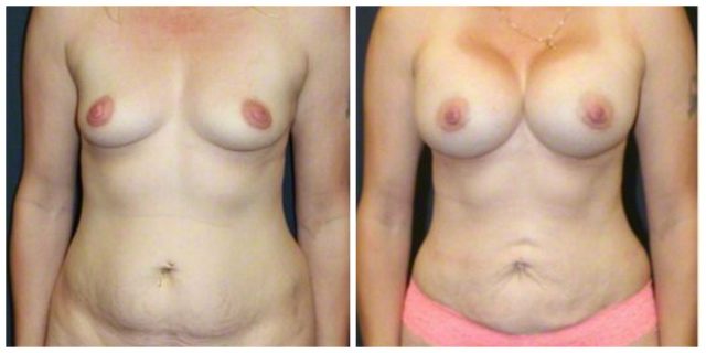 West Palm Beach Mini Tummy Tuck - Before and After Mini Abdominoplasty West Palm Beach