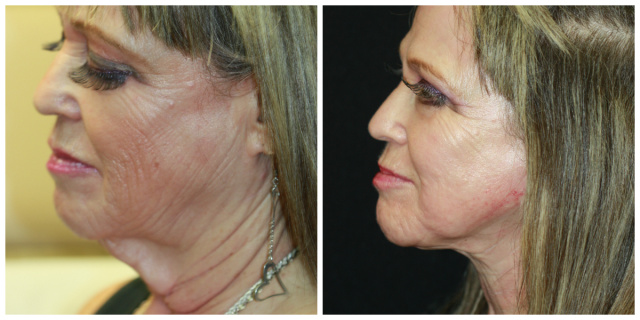 West Palm Beach Neck Lift - Before and After West Palm Beach necklift