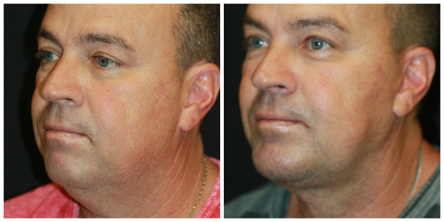 West Palm Beach Neck Lift - Before and After Necklift West Palm Beach