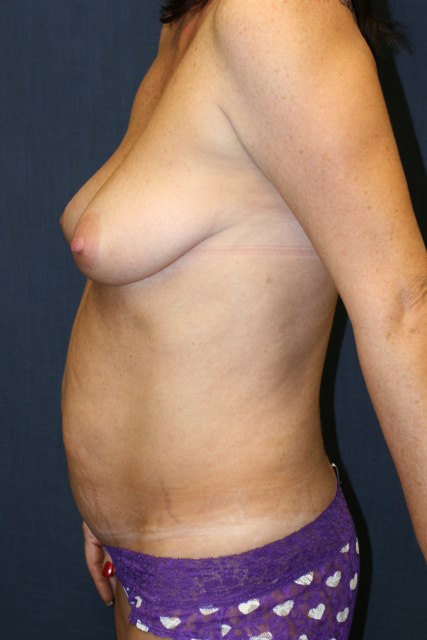 West Palm Beach Abdominoplasty - Before Mini Tummy Tuck West Palm Beach