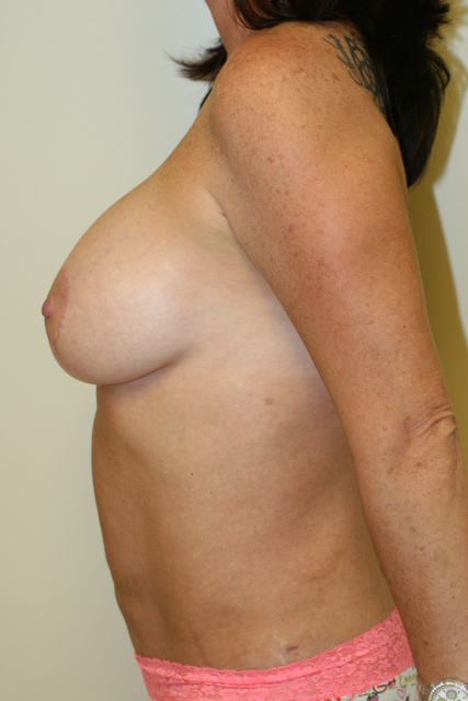 West Palm Beach Mastopexy - After West Palm Beach Breast Lift