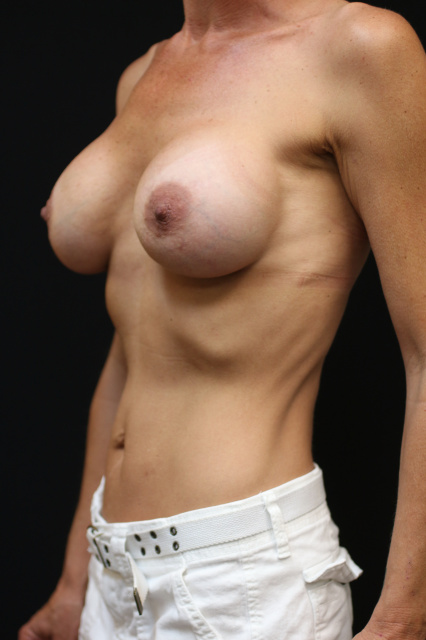 West Palm Beach Breast Implant Exchange - After Breast Implant Revision West Palm Beach