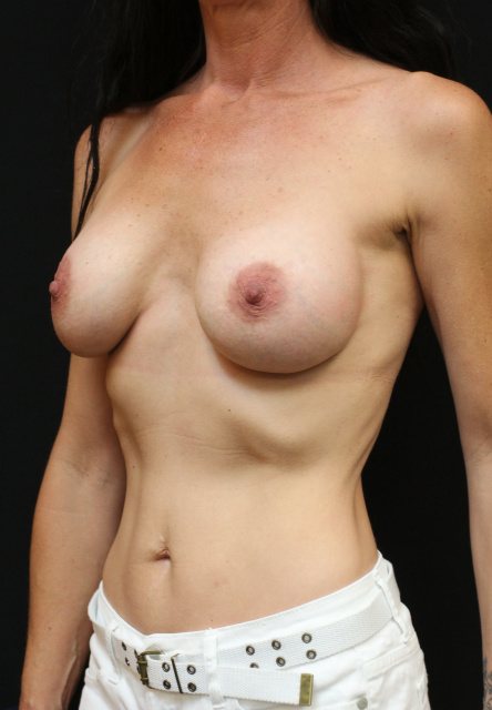 West Palm Beach Breast Implant Exchange - Before Breast Implant Revision West Palm Beach