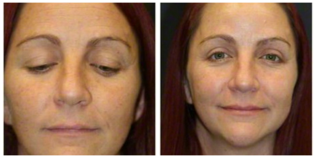 West Palm Beach Restylane - Before and after restylane west palm beach