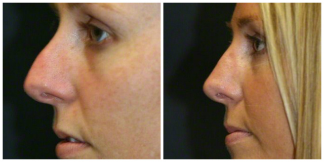 West Palm Beach Rhinoplasty Revision - Before and After Revision Rhinoplasty West Palm Beach