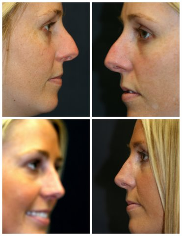 Revision Rhinoplasty West Palm Beach