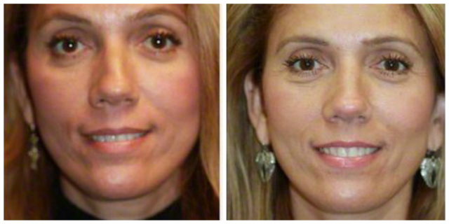 West Palm Beach Septoplasty - Before and After Septoplasty West Palm Beach