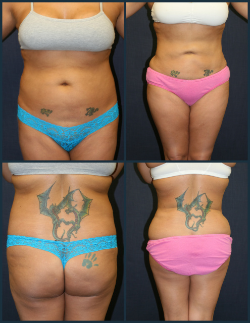 West Palm Beach Liposuction of Abdomen, Flanks, and Hip Rolls, and Lower Back