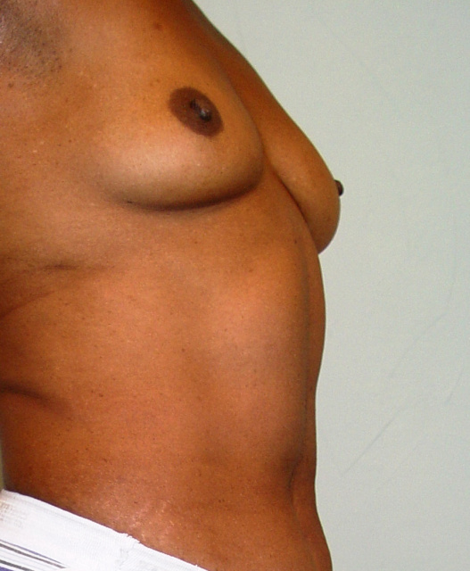 West Palm Beach Breast Augmentation - Before Breast Implants
