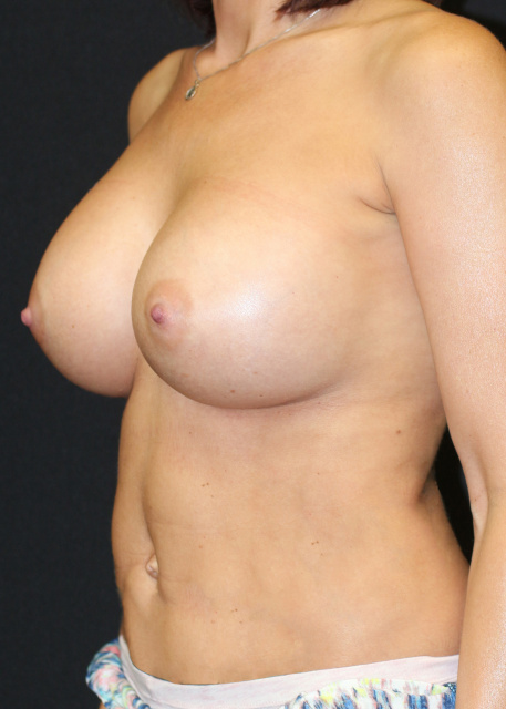 Post West Palm Beach Breast Augmentation - Post West Palm Beach Sientra Breast Implants