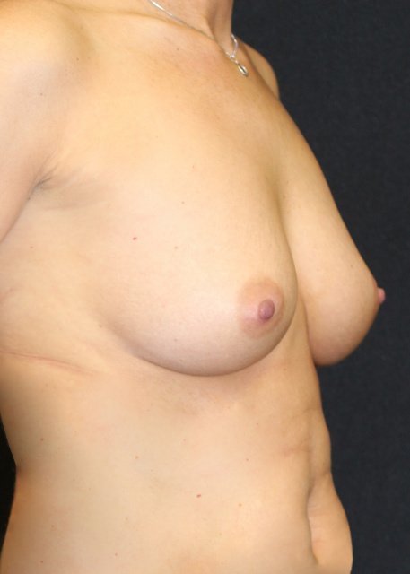 Pre West Palm Beach Breast Augmentation - Pre Sientra Breast Implants West Palm Beach