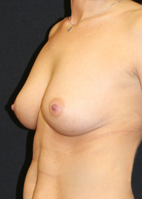 Breast Implants West Palm Beach Pre - West Palm Beach Sientra Breast Implants Pre