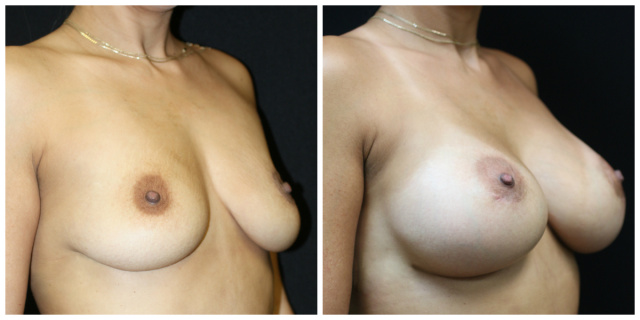 West Palm Beach Breast Implants - Before and After Breast Implants West Palm Beach